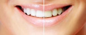 Dinți albi